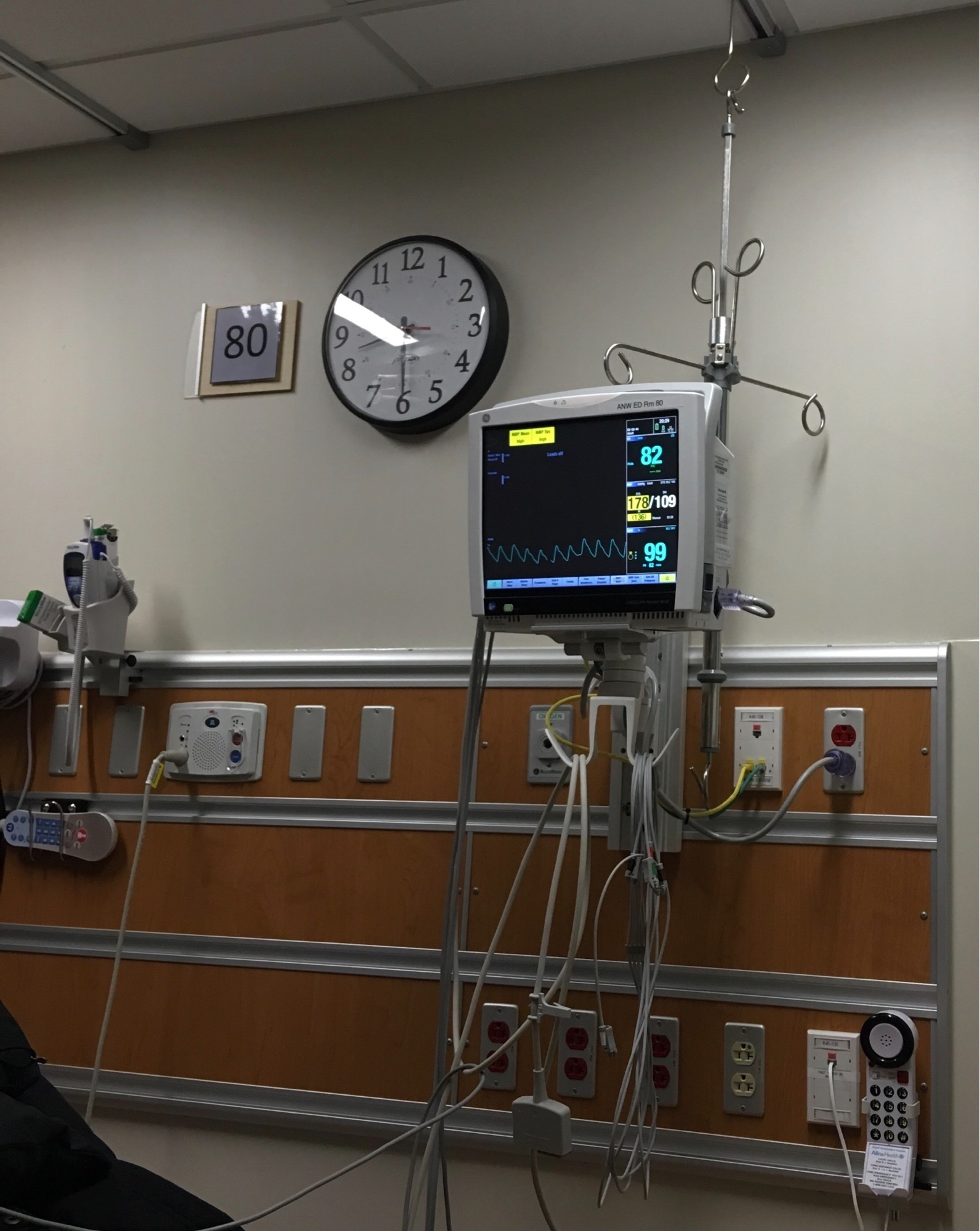 ER triage room with lots of cables and wires, and an extremely high blood-pressure reading on the vitals display